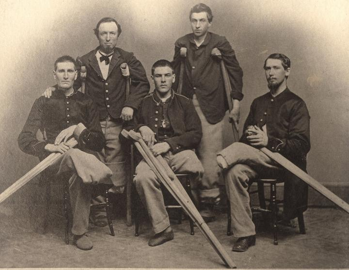 Was Civil War surgery really excruciating AF?